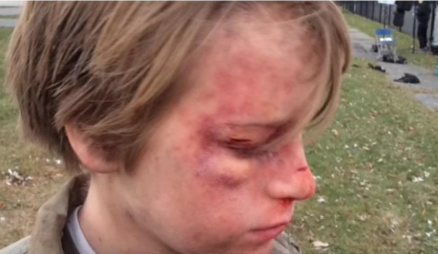 Junges Mädchen Vergewaltigt